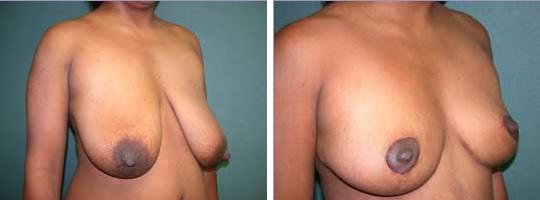 thumb breast reduction 1