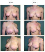 breast reduction 3