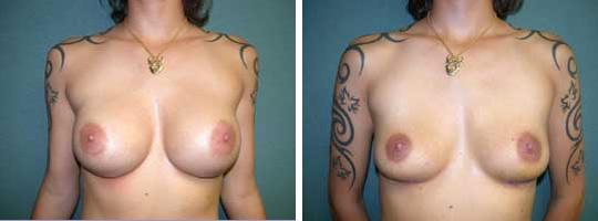 thumb breast revision implant removal