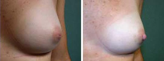 inverted nipple correction 1