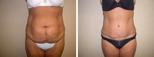 abdominoplasty 1